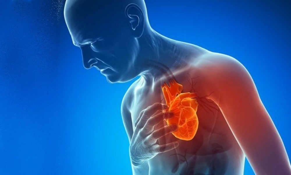 Ataque cardíaco O que é E como prevenir