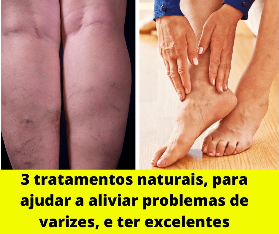 3 tratamentos naturais, para ajudar a aliviar problemas de varizes, e ter excelentes resultados