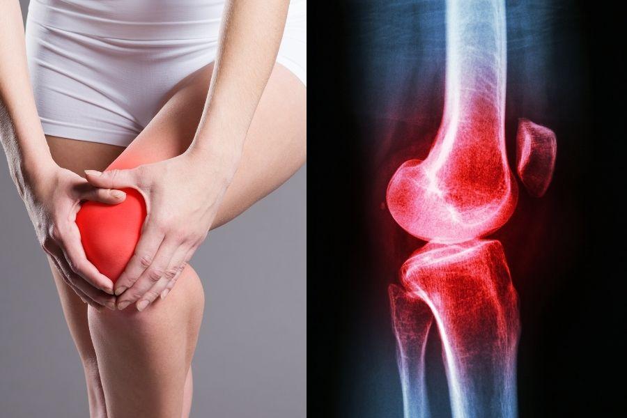 Acabe com a dor nos joelhos e a inflamação